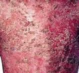牛皮癣的病因有哪些