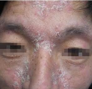 脸部银屑病用什么方法治疗