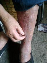 牛皮癣对于老年患者伤害很大